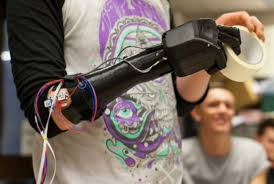 Bristol robotic hand pioneer Open Bionics makes it onto prestigious 'ones to watch' list